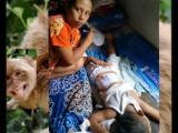 Monyet Serang Warga Kerasaan, 2 Bocah Terluka
